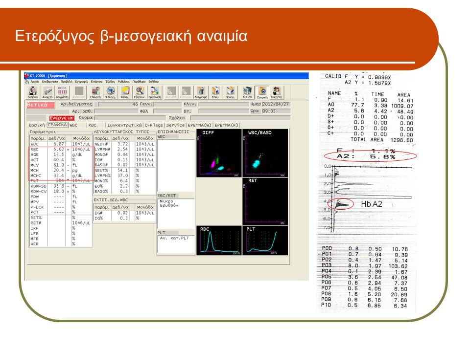 Ετερόζυγος β-μεσογειακή αναιμία Hb A2
