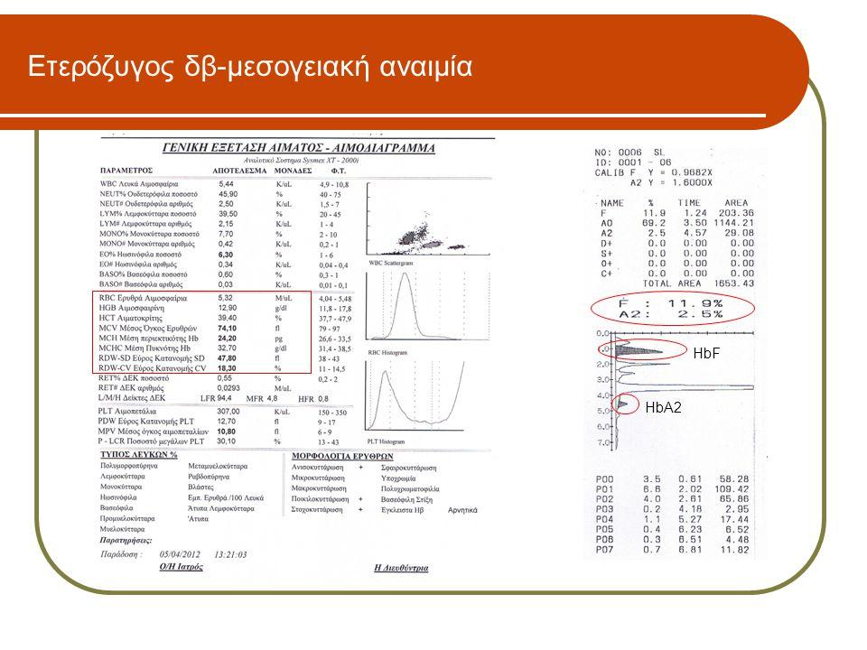 Ετερόζυγος δβ-μεσογειακή αναιμία HbF HbA2