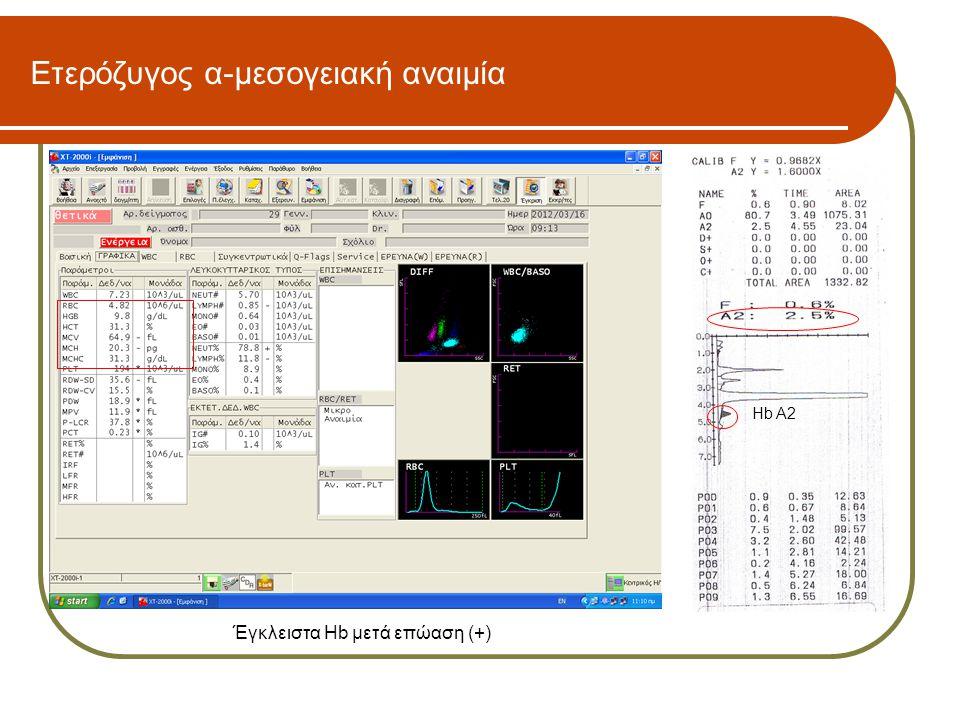 Ετερόζυγος α-μεσογειακή αναιμία Hb A2 Έγκλειστα Hb μετά επώαση (+)