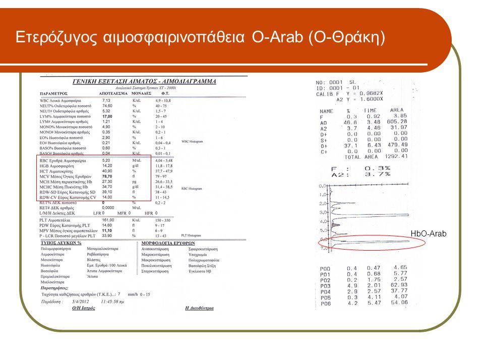 Ετερόζυγος αιμοσφαιρινοπάθεια O-Arab (Ο-Θράκη) HbO-Arab