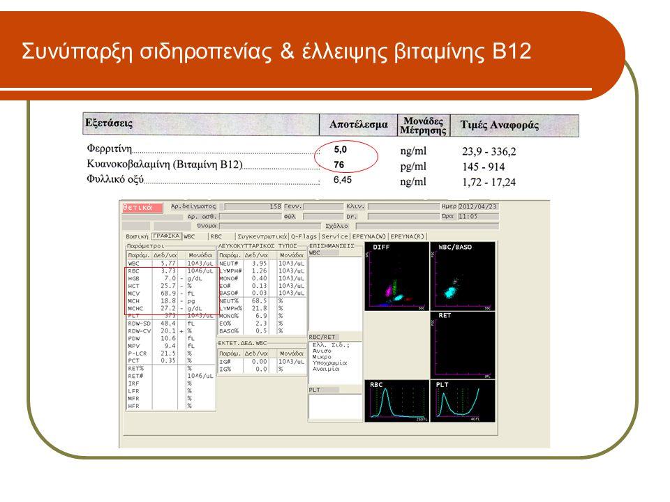 Συνύπαρξη σιδηροπενίας & έλλειψης βιταμίνης Β12