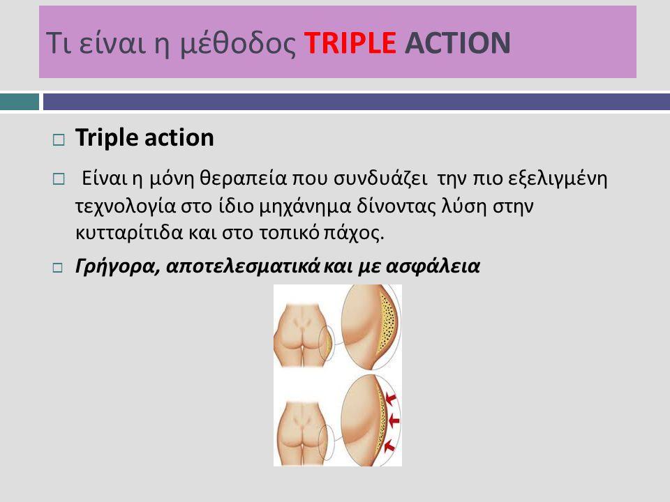 Τι είναι η μέθοδος TRIPLE ACTION  Triple action  Είναι η μόνη θεραπεία που συνδυάζει την πιο εξελιγμένη τεχνολογία στο ίδιο μηχάνημα δίνοντας λύση σ