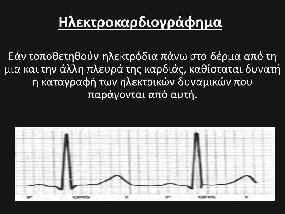 Ηλεκτροκαρδιογράφημα Εάν τοποθετηθούν ηλεκτρόδια πάνω στο δέρμα από τη μια και την άλλη πλευρά της καρδιάς, καθίσταται δυνατή η καταγραφή των ηλεκτρικ