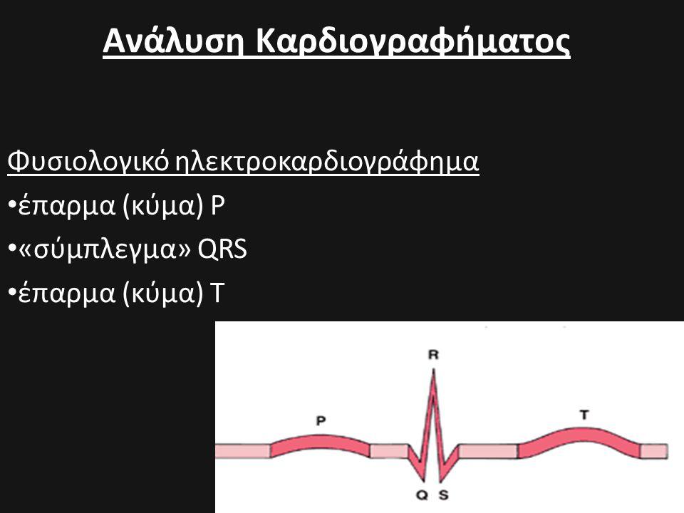 Ανάλυση Καρδιογραφήματος Φυσιολογικό ηλεκτροκαρδιογράφημα • έπαρμα (κύμα) Ρ • «σύμπλεγμα» QRS • έπαρμα (κύμα) Τ