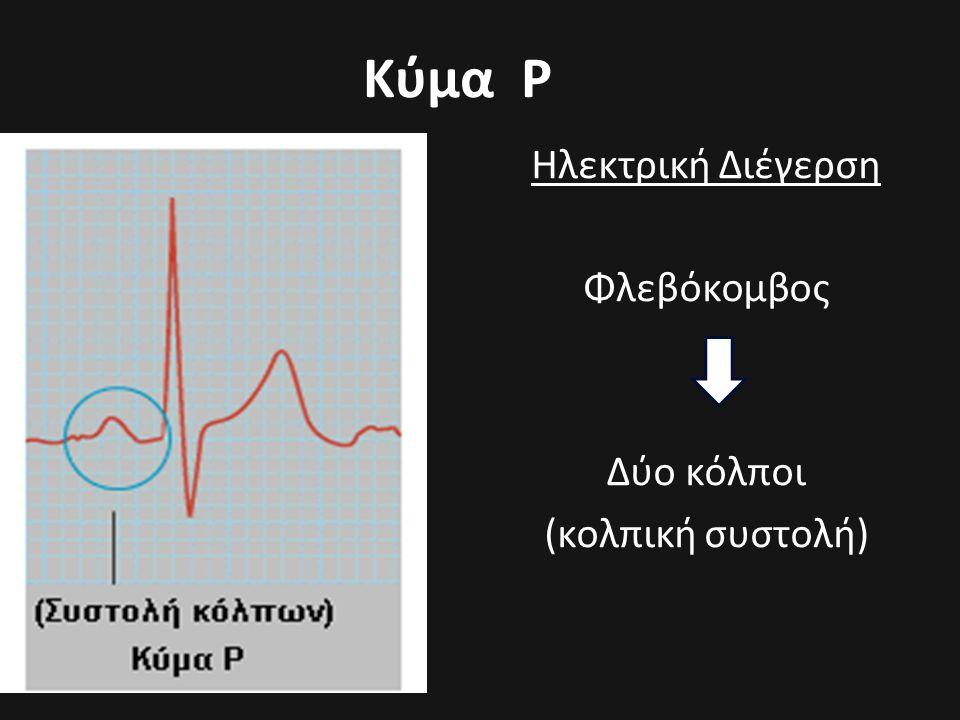 Κύμα Ρ Ηλεκτρική Διέγερση Φλεβόκομβος Δύο κόλποι (κολπική συστολή)