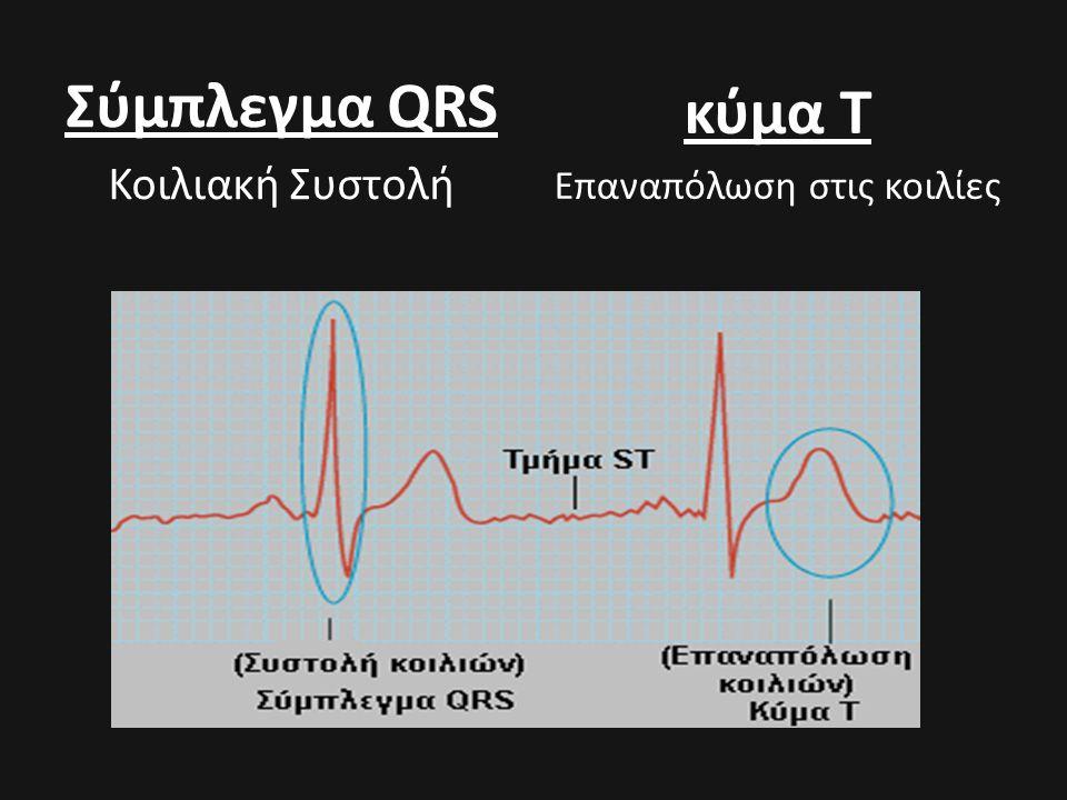 Σύμπλεγμα QRS Κοιλιακή Συστολή κύμα Τ Επαναπόλωση στις κοιλίες