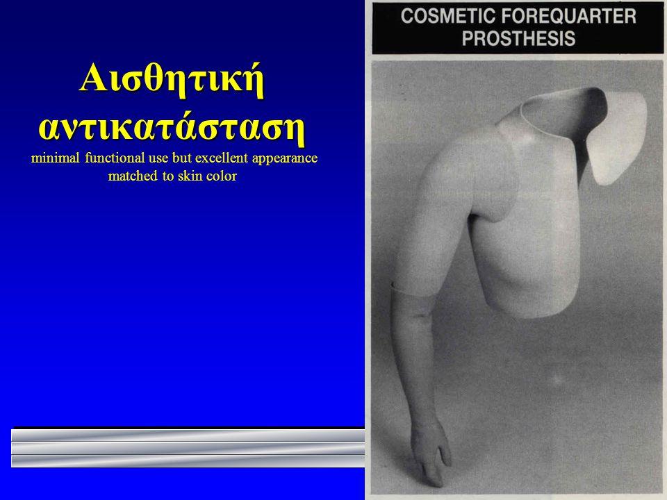 Αισθητική αντικατάσταση Αισθητική αντικατάσταση minimal functional use but excellent appearance matched to skin color