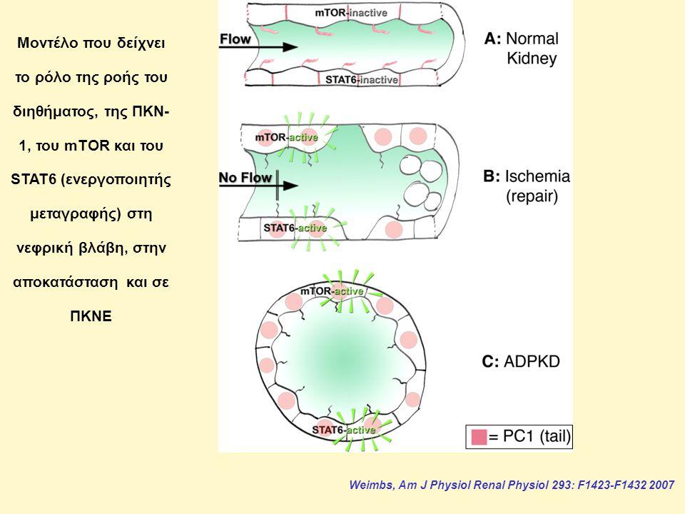 Weimbs, Am J Physiol Renal Physiol 293: F1423-F1432 2007 Μοντέλο που δείχνει το ρόλο της ροής του διηθήματος, της ΠΚΝ- 1, του mTOR και του STAT6 (ενεργοποιητής μεταγραφής) στη νεφρική βλάβη, στην αποκατάσταση και σε ΠΚΝΕ