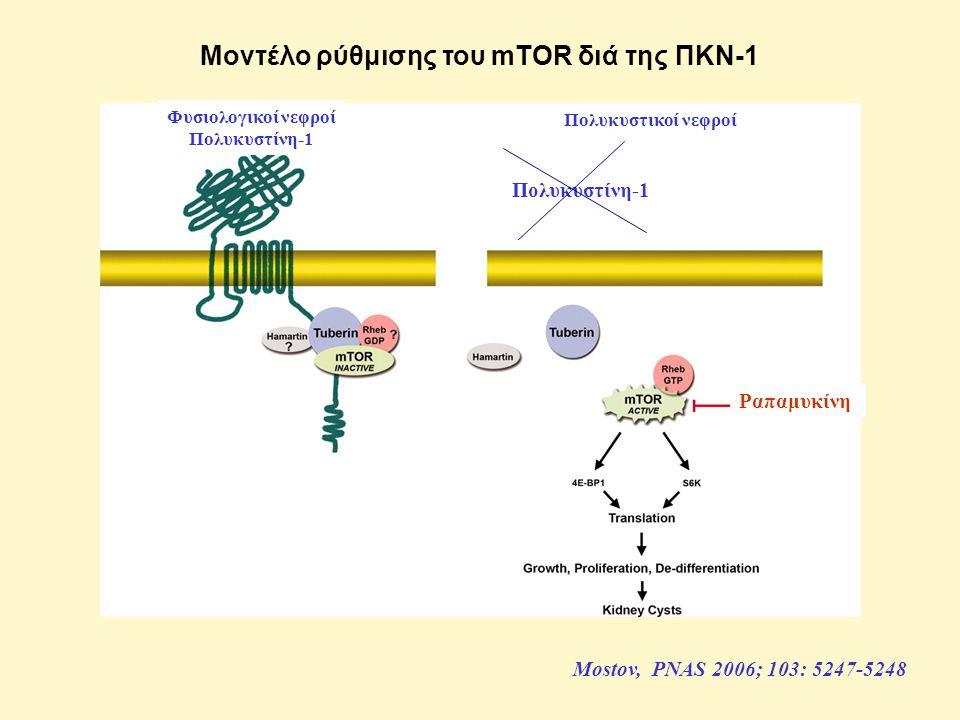 Μοντέλο ρύθμισης του mTOR διά της ΠΚΝ-1 Mostov, PNAS 2006; 103: 5247-5248 Φυσιολογικοί νεφροί Πολυκυστίνη-1 Πολυκυστικοί νεφροί Πολυκυστίνη-1 Ραπαμυκίνη