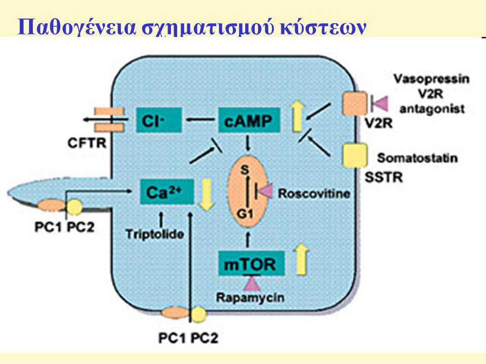 Παθογένεια σχηματισμού κύστεων 1.Κυτταρική υπερπλασία 1.Ογκογονίδια 2.Αυξητικοί παράγοντες 3.Πολυκυστίνες 4.Μεταγραφικοί παράγοντες 5.Κυτοκίνες 6.Πρωτεολυτικά ένζυμα 7.Υδατοπορίνες 2.Εξωκυττάρια θεμέλια ουσία και βασικές μεμβράνες 1.Εξωκυττάρια ουσία 2.Βασικές μεμβράνες 3.Έκκριση 4.Πολικότητα