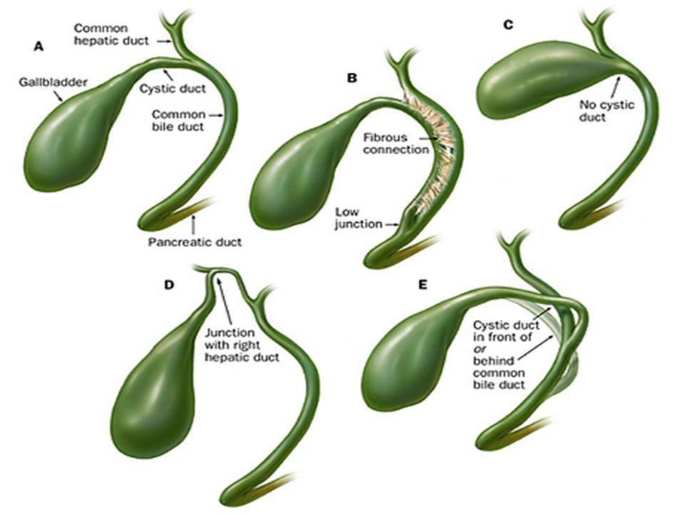 Παθοφυσιολογία χολολιθίασης 1.Υπερκορεσμός σε χοληστερόλη 2.Επιτάχυνση της κρυστάλλωσης 3.Υποκινησία της χοληδόχου κύστης