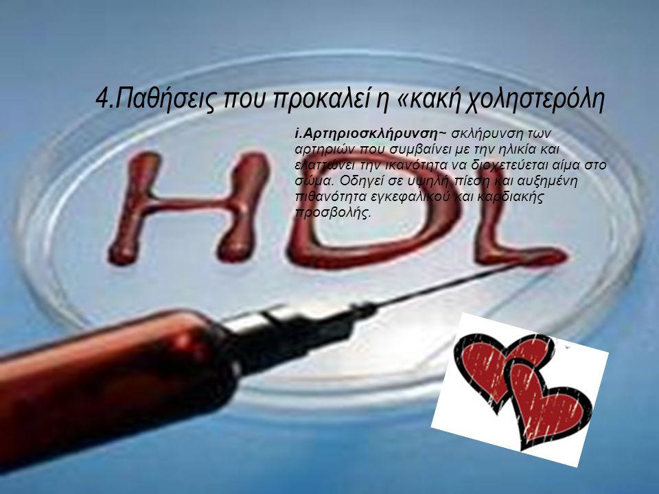 4.Παθήσεις που προκαλεί η «κακή χοληστερόλη i.Αρτηριοσκλήρυνση~ σκλήρυνση των αρτηριών που συμβαίνει με την ηλικία και ελαττώνει την ικανότητα να διοχετεύεται αίμα στο σώμα.