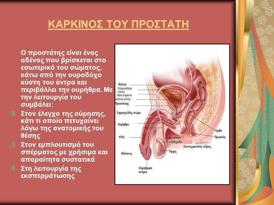 ΚΑΡΚΙΝΟΣ ΤΟΥ ΠΡΟΣΤΑΤΗ Ο προστάτης είναι ένας αδένας που βρίσκεται στο εσωτερικό του σώματος, κάτω από την ουροδόχο κύστη του άντρα και περιβάλλει την