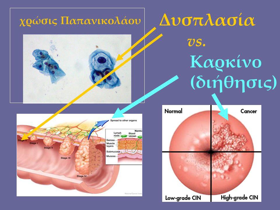 χρώσις Παπανικολάου Δυσπλασία vs. Καρκίνο (διήθησις)
