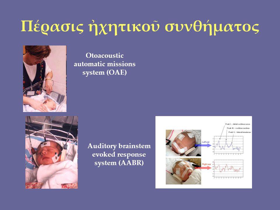 Πέρασις ἠχητικοῦ συνθήματος Auditory brainstem evoked response system (AABR) Otoacoustic automatic missions system (OAE)