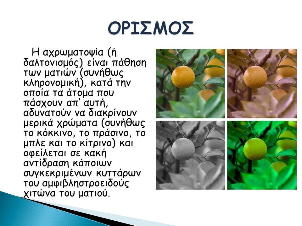 Η αχρωματοψία (ή δαλτονισμός) είναι πάθηση των ματιών (συνήθως κληρονομική), κατά την οποία τα άτομα που πάσχουν απ' αυτή, αδυνατούν να διακρίνουν μερικά χρώματα (συνήθως το κόκκινο, το πράσινο, το μπλε και το κίτρινο) και οφείλεται σε κακή αντίδραση κάποιων συγκεκριμένων κυττάρων του αμφιβληστροειδούς χιτώνα του ματιού.