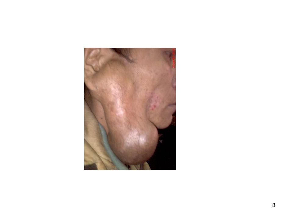 9 Φάρυγγας •Η μαλακή υπερώα τον χωρίζει στην –Άνω ή ρινική μοίρα (ρινική κοιλότητα με τραχεία) –Κάτω ή στοματική μοίρα (στοματική κοιλότητα με οισοφάγο)