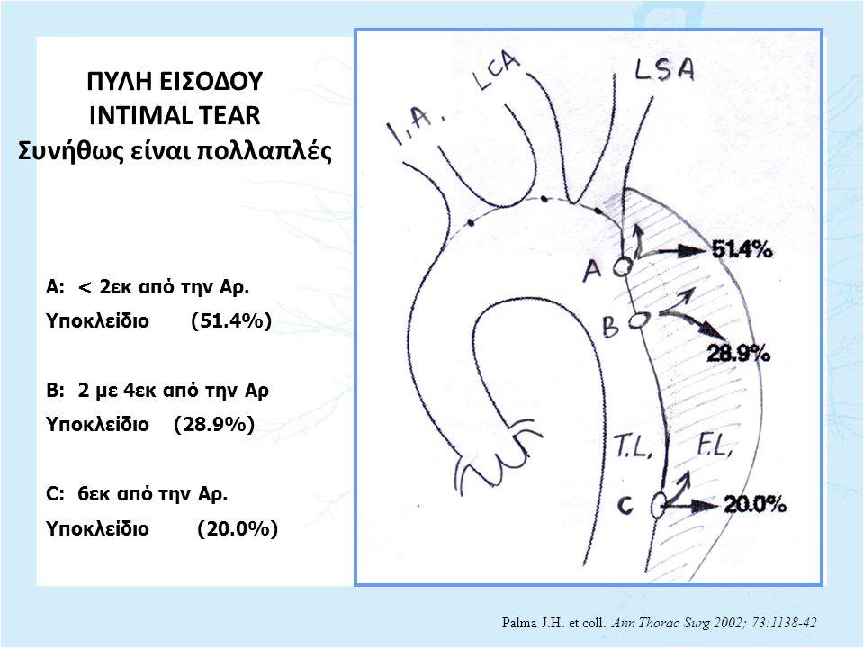 A: < 2εκ από την Αρ. Υποκλείδιο (51.4%) B: 2 με 4εκ από την Αρ Υποκλείδιο (28.9%) C: 6εκ από την Αρ. Υποκλείδιο (20.0%) Palma J.H. et coll. Ann Thorac
