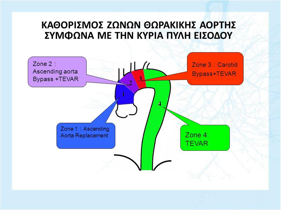 ΚΑΘΟΡΙΣΜΟΣ ΖΩΝΩΝ ΘΩΡΑΚΙΚΗΣ ΑΟΡΤΗΣ ΣΥΜΦΩΝΑ ΜΕ ΤΗΝ ΚΥΡΙΑ ΠΥΛΗ ΕΙΣΟΔΟΥ Zone 3 : Carotid Bypass+TEVAR Zone 4: TEVAR Zone 1 : Ascending Aorta Replacement Zone 2 : Ascending aorta Bypass +TEVAR