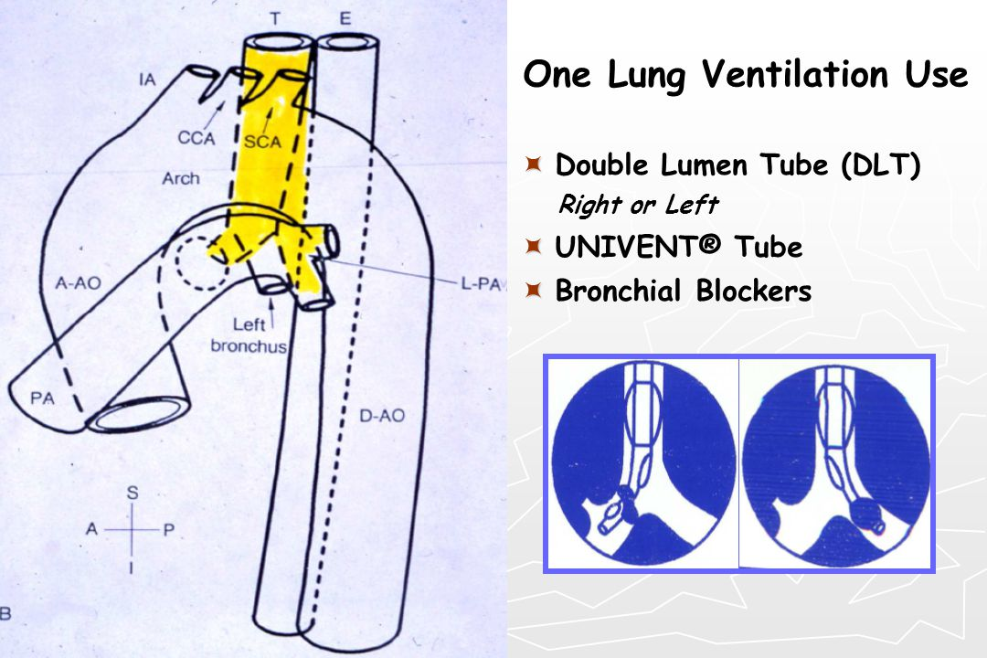 One Lung Ventilation Use   Double Lumen Tube (DLT) Right or Left   UNIVENT® Tube   Bronchial Blockers