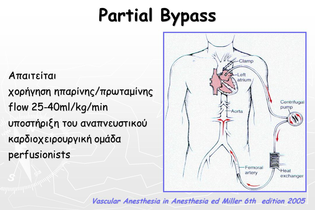 Partial Bypass Απαιτείται χορήγηση ηπαρίνης/πρωταμίνης flow 25-40ml/kg/min υποστήριξη του αναπνευστικού καρδιοχειρουργική ομάδα perfusionists Vascular