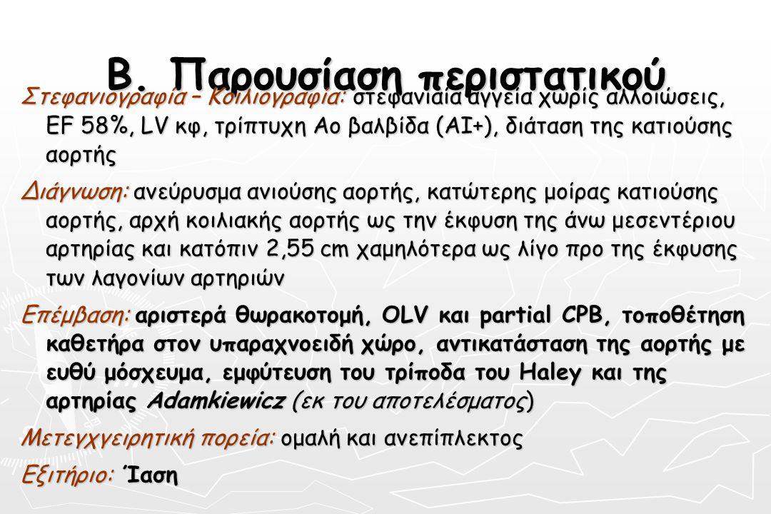 Β. Παρουσίαση περιστατικού Στεφανιογραφία – Κοιλιογραφία: στεφανιαία αγγεία χωρίς αλλοιώσεις, EF 58%, LV κφ, τρίπτυχη Ao βαλβίδα (AI+), διάταση της κα