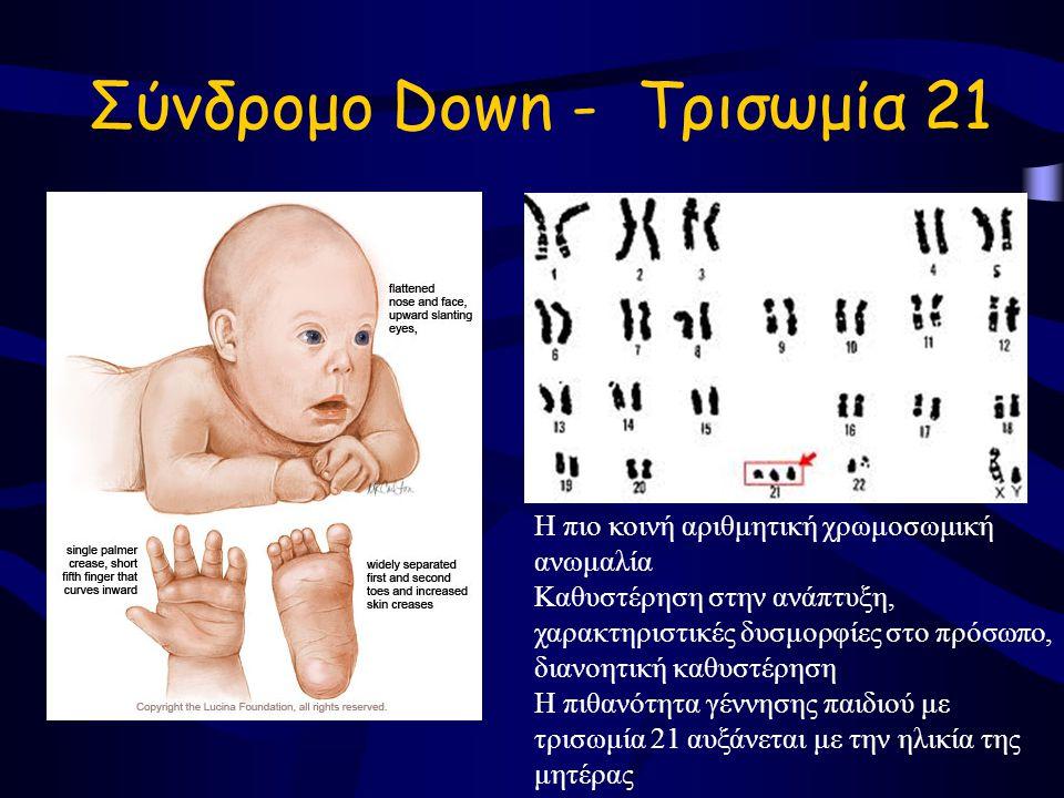Σύνδρομο Down - Τρισωμία 21 Η πιο κοινή αριθμητική χρωμοσωμική ανωμαλία Καθυστέρηση στην ανάπτυξη, χαρακτηριστικές δυσμορφίες στο πρόσωπο, διανοητική καθυστέρηση Η πιθανότητα γέννησης παιδιού με τρισωμία 21 αυξάνεται με την ηλικία της μητέρας