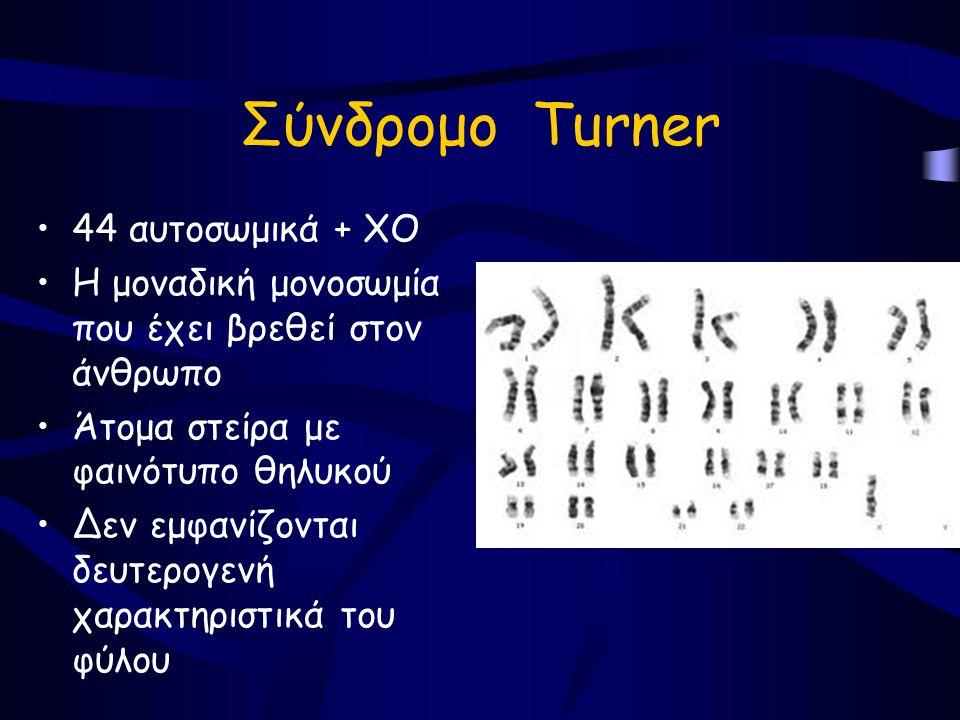 Σύνδρομο Τurner •44 αυτοσωμικά + ΧΟ •Η μοναδική μονοσωμία που έχει βρεθεί στον άνθρωπο •Άτομα στείρα με φαινότυπο θηλυκού •Δεν εμφανίζονται δευτερογενή χαρακτηριστικά του φύλου
