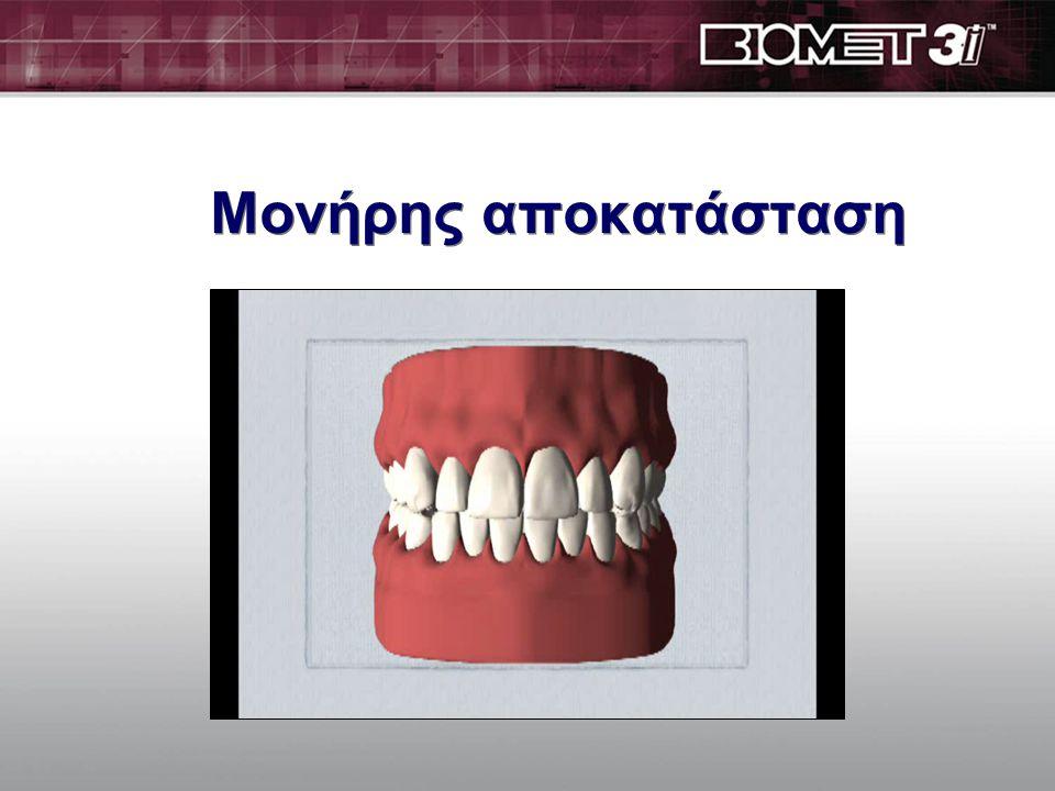 Bone Atrophy Ανατομικές συνέπειες της νωδότητας  Προφίλ προσώπου με κατάρρευση  Συρρικνωμένα χείλη  Αυξημένες ρυτίδες γύρω από το στόμα  Προεξέχον πηγούνι και μύτη που πλησιάζει πολύ κοντά στο πηγούνι.