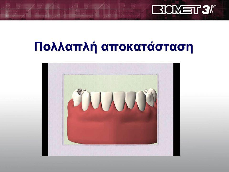 Πολλαπλή αποκατάσταση  Τα οδοντικά εμφυτεύματα είναι πολύ στέρεα και ενσωματώνονται στο οστό τόσο καλά ώστε δεν είναι απαραίτητο για κάθε δόντι που λείπει να τοποθετούμε και ένα εμφύτευμα  Ο γιατρός σας θα αποφασίσει πόσα εμφυτεύματα θα τοποθετηθούν ανάλογα με την κάθε περίπτωση που είναι μοναδική.