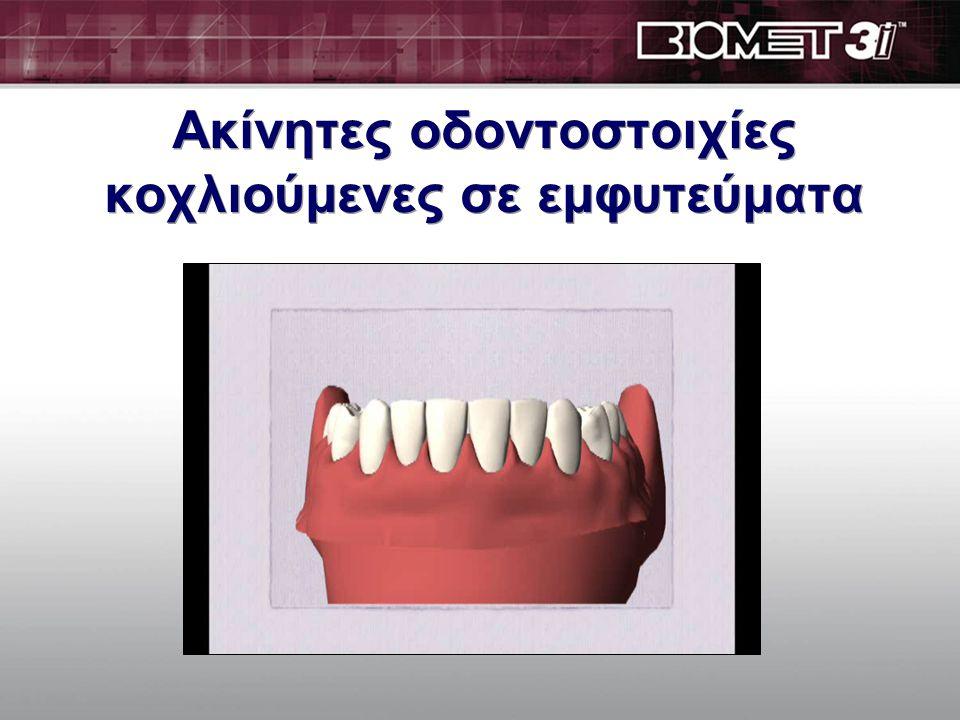 Ολικά νωδοί ασθενείς αποκατάσταση όλου του στόματος  Για να αποκαταστήσουμε όλα τα δόντια με σταθερή κατασκευή: –5 εμφυτεύματα στην κάτω γνάθο –6-8 εμφυτεύματα στην άνω γνάθο  Για να αποκαταστήσουμε όλα τα δόντια με κινητή κατασκευή: (οδοντοστοιχίες που συγκρατούνται πάνω στα εμφυτεύματα) - 2 εμφυτεύματα στην κάτω γνάθο - 4 εμφυτεύματα στην άνω γνάθο  Για να αποκαταστήσουμε όλα τα δόντια με σταθερή κατασκευή: –5 εμφυτεύματα στην κάτω γνάθο –6-8 εμφυτεύματα στην άνω γνάθο  Για να αποκαταστήσουμε όλα τα δόντια με κινητή κατασκευή: (οδοντοστοιχίες που συγκρατούνται πάνω στα εμφυτεύματα) - 2 εμφυτεύματα στην κάτω γνάθο - 4 εμφυτεύματα στην άνω γνάθο