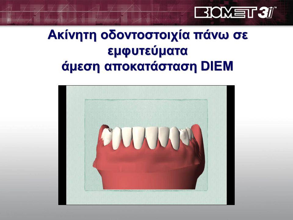 Τα οδοντικά εμφ. γενικά χρειάζονται 2 μήνες για να ενσωματωθούν στο οστό. Τότε είναι που στερεώνονται στο οστό με ασφάλεια. Στην συνέχεια τοποθετούντα