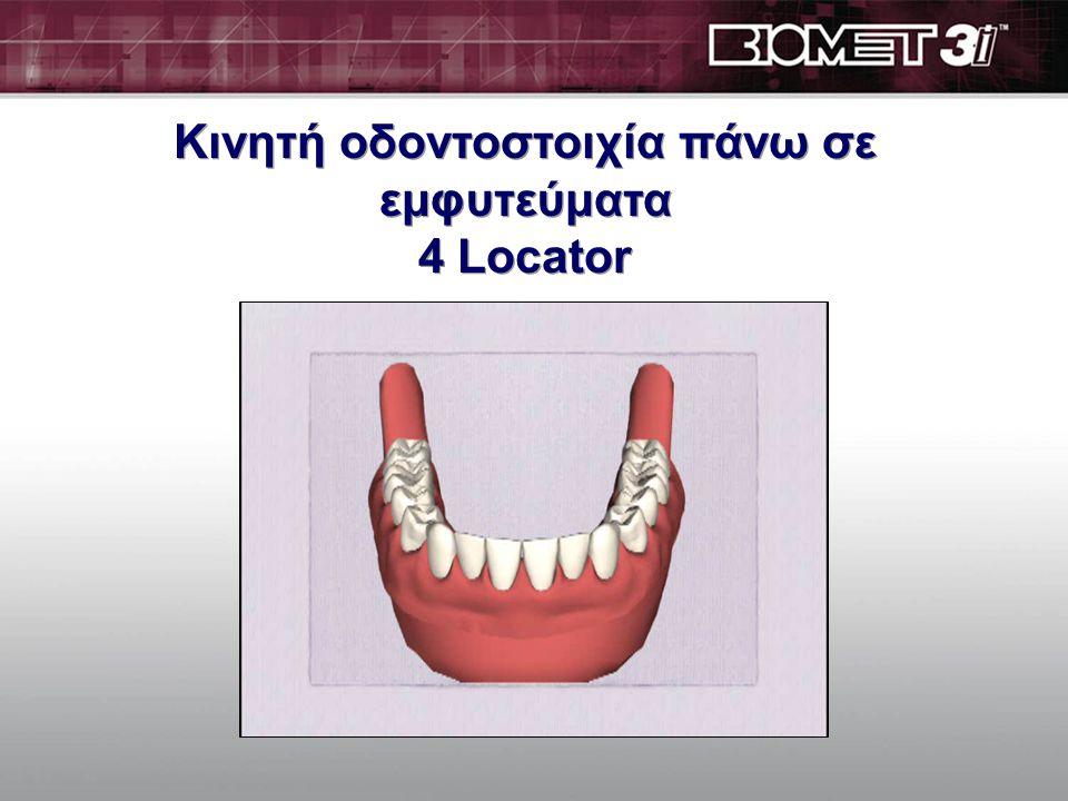 Ακίνητη οδοντοστοιχία πάνω σε εμφυτεύματα άμεση αποκατάσταση DIEM