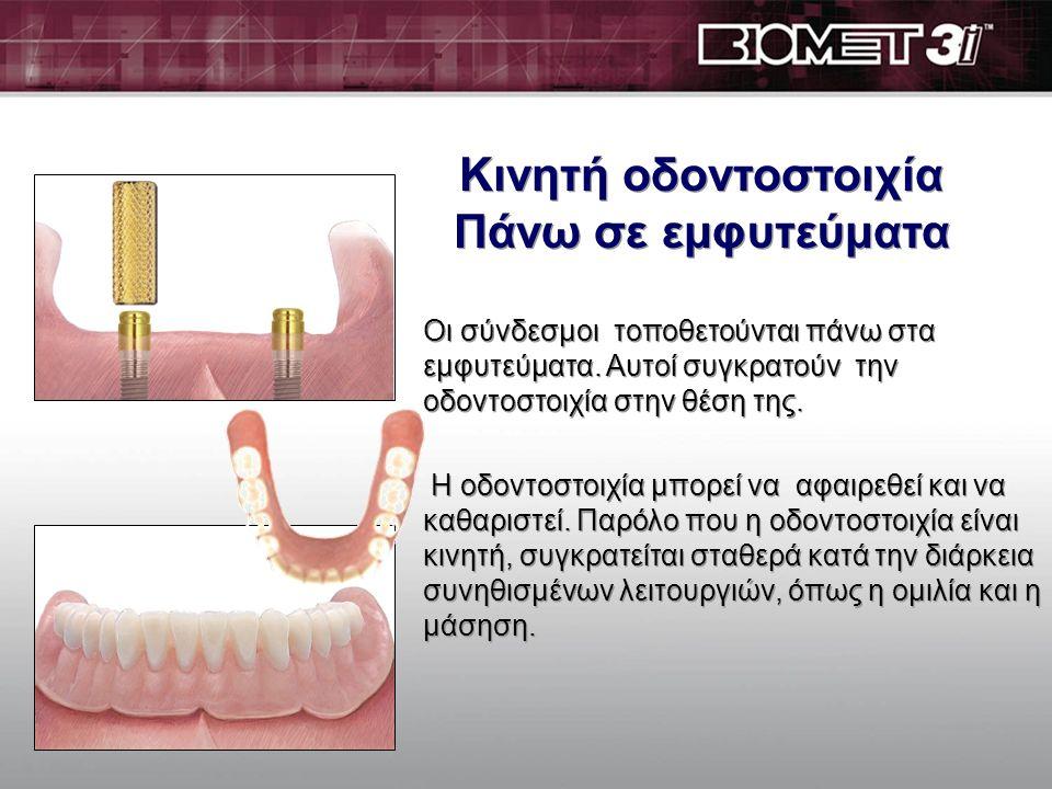 Kινητή οδοντοστοιχία πάνω σε εμφυτεύματα 4 Locator Kινητή οδοντοστοιχία πάνω σε εμφυτεύματα 4 Locator