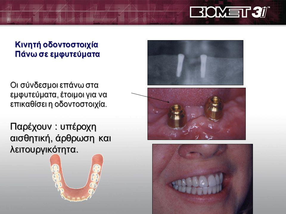 Κινητή οδοντοστοιχία Πάνω σε εμφυτεύματα Κινητή οδοντοστοιχία Πάνω σε εμφυτεύματα Οι σύνδεσμοι τοποθετούνται πάνω στα εμφυτεύματα. Αυτοί συγκρατούν τη