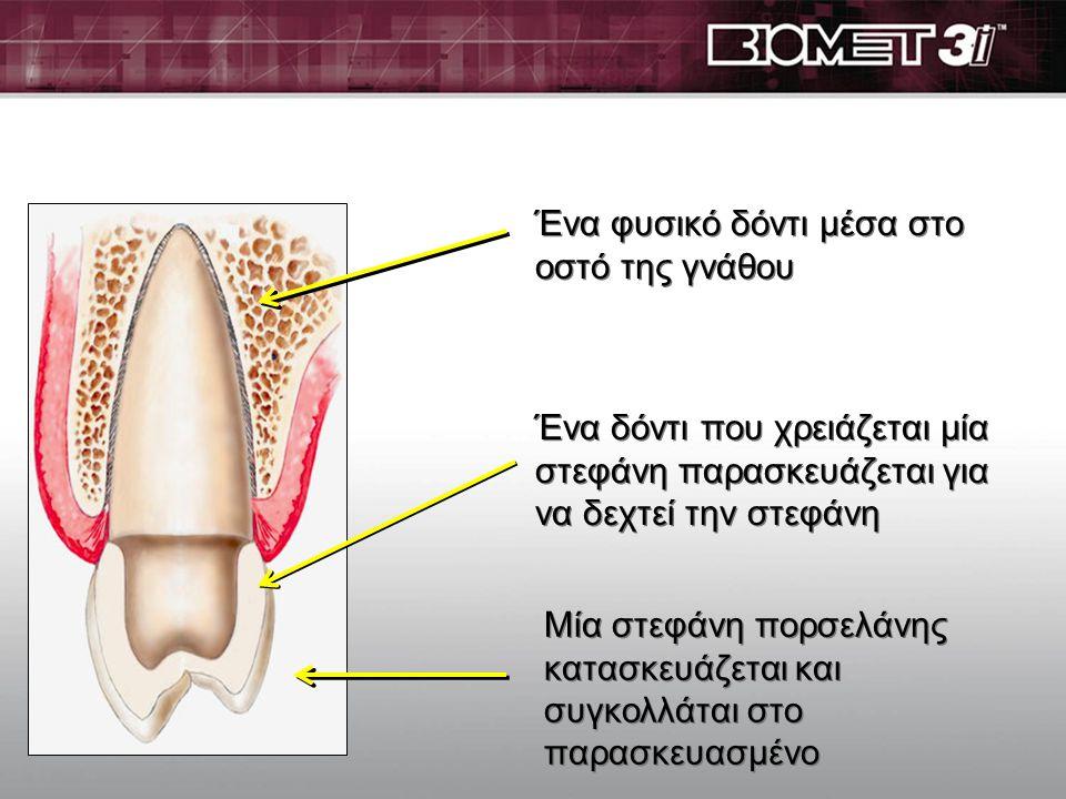 Τι είναι τα οδοντικά εμφυτεύματα? Τα οδοντικά εμφυτεύματα είναι μικρές βίδες τιτανίου που εκτελούν την λειτουργία της φυσικής ρίζας και μπορούν να αντ