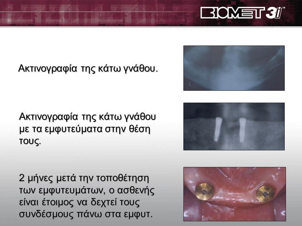 Οι σύνδεσμοι επάνω στα εμφυτεύματα, έτοιμοι για να επικαθίσει η οδοντοστοιχία. Παρέχουν : υπέροχη αισθητική, άρθρωση και λειτουργικότητα. Κινητή οδοντ