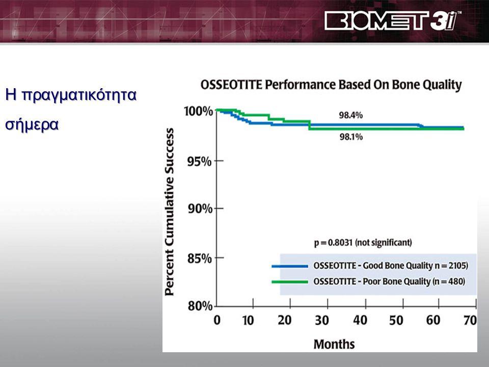 Πτωχή ποιότητα οστού επηρεάζει αρνητικά την επιτυχία των εμφ/των Bryant SR. Int J Prosthodont 1998; 11: 470-490 In threaded titanium implants, high fa