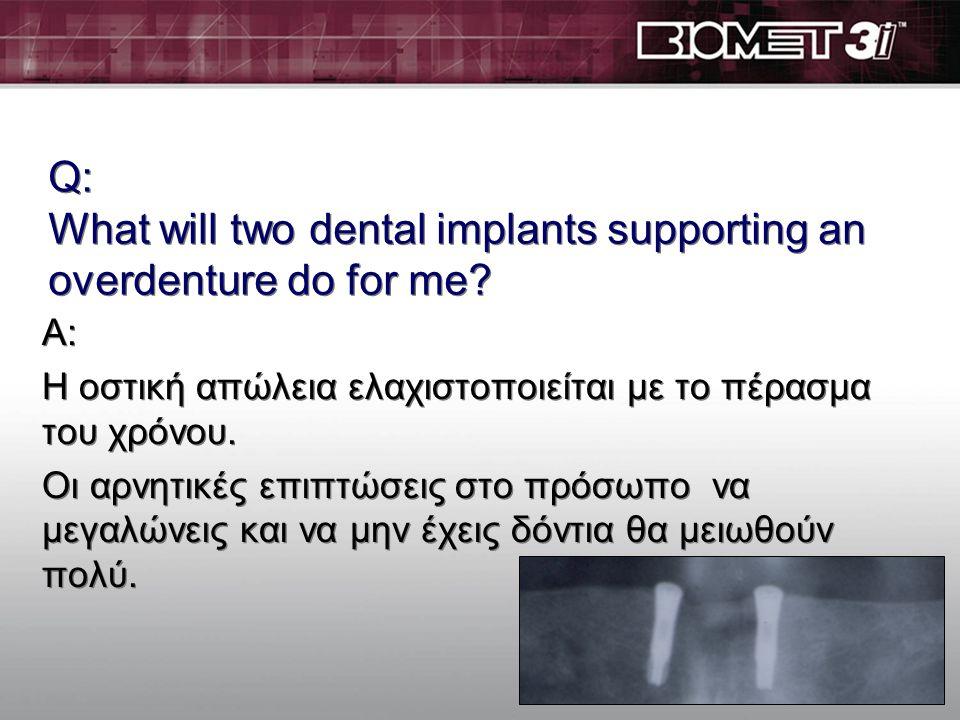 Ε: Τι μπορούν να κάνουν δύο εμφ/τα που συγκρατούν μια οδοντ/χια για εμένα? A: Αυξάνουν την μασητική σου ικανότητα. Θα μπορείς να τρως πιο υγιεινές τρο