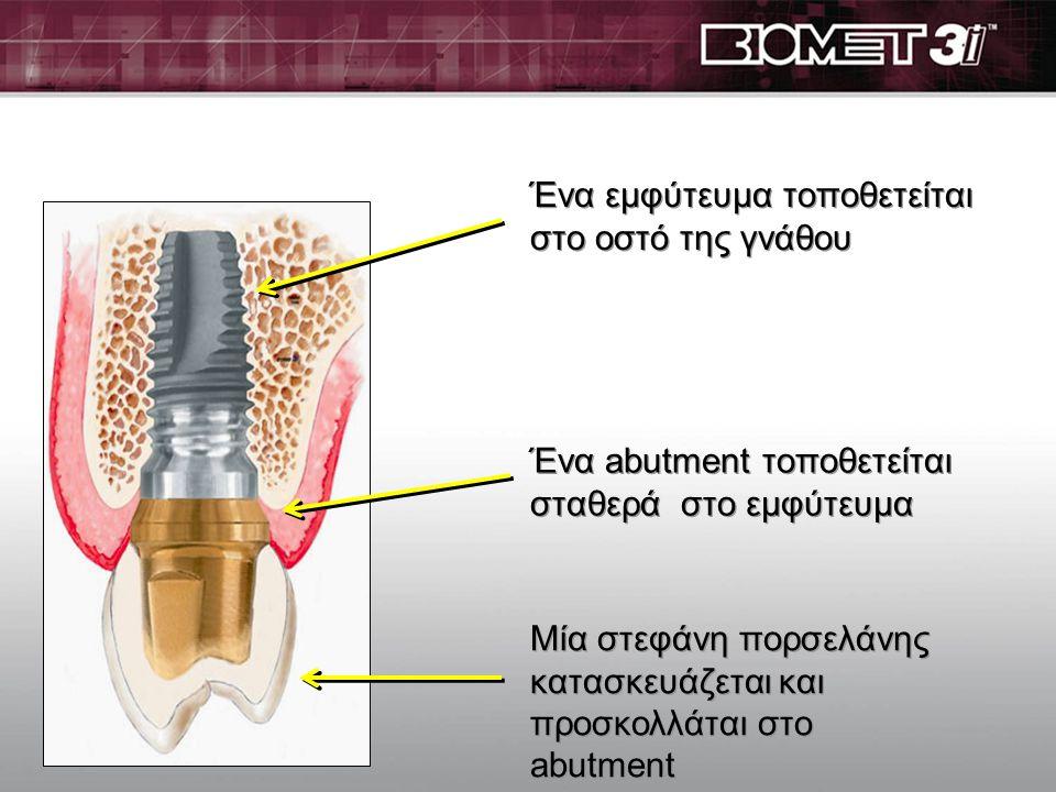 Μία στεφάνη πορσελάνης κατασκευάζεται και συγκολάται στο παρασκευασμένο ή στο abutment Ένα δόντι που χρειάζεται μία στεφάνη παρασκευάζεται για να δεχτ