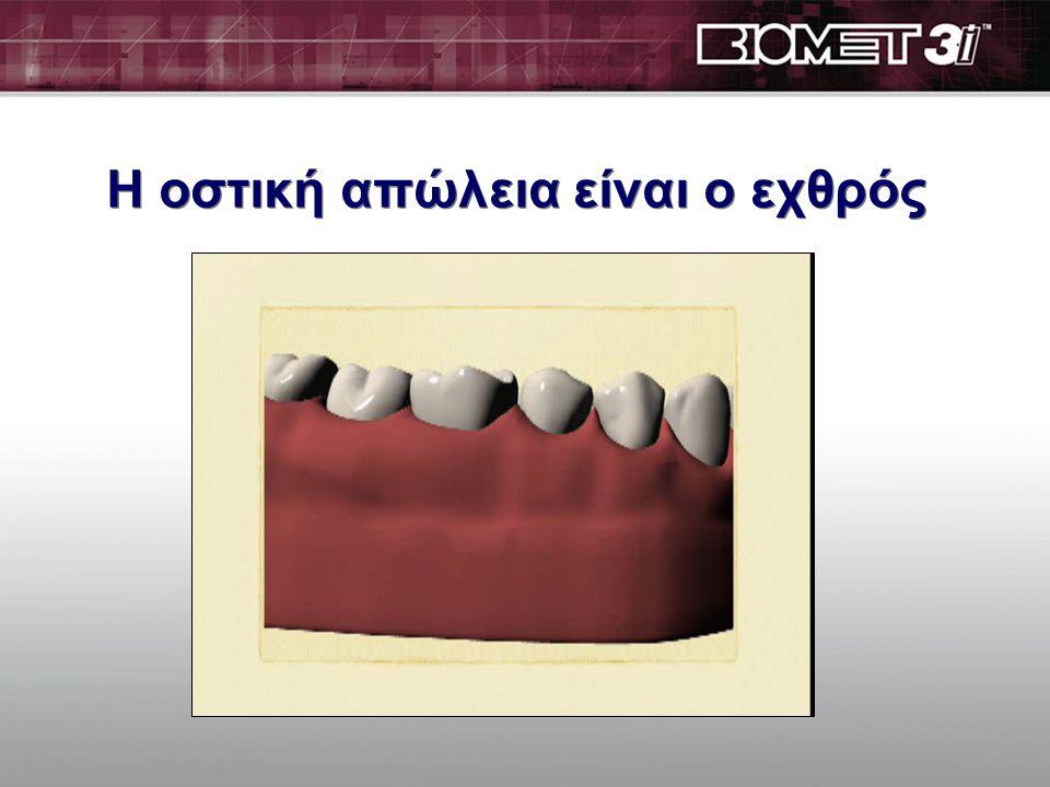 Εμφυτεύματα σε σύγκριση με συμβατικές θεραπείες ολικών οδοντοστοιχιών Απώλεια οστού Κατάρρευση προσώπου