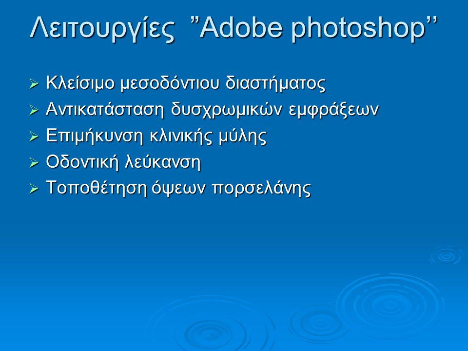 Λειτουργίες Αdobe photoshop''  Κλείσιμο μεσοδόντιου διαστήματος  Αντικατάσταση δυσχρωμικών εμφράξεων  Επιμήκυνση κλινικής μύλης  Οδοντική λεύκανση  Τοποθέτηση όψεων πορσελάνης