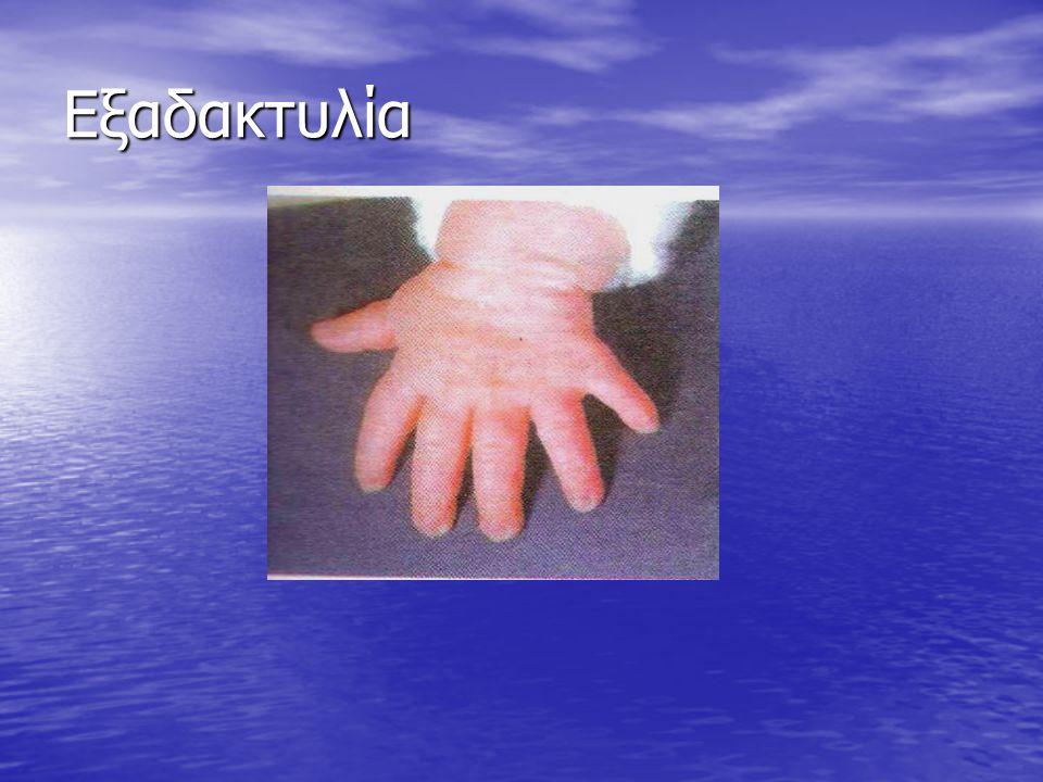 Τι μπορεί να προκαλέσει η μετάλλαξη ενός γονιδίου; • Μπορεί να προκαλέσει την ανάπτυξη ενός επιπλέον δακτύλου στο χέρι ή στο πόδι (εξαδακτυλία) • Μπορ