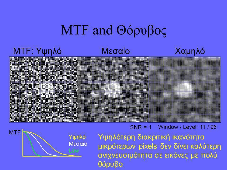 MTF and Θόρυβος SNR = 1 Window / Level: 11 / 96 Υψηλότερη διακριτική ικανότητα μικρότερων pixels δεν δίνει καλύτερη ανιχνευσιμότητα σε εικόνες με πολύ θόρυβο MTF: ΥψηλόΜεσαίοΧαμηλό MTF Υψηλό Μεσαίο Low