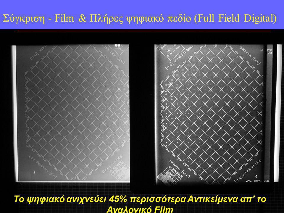 Film Digital Detector Σύγκριση - Film & Πλήρες ψηφιακό πεδίο (Full Field Digital) Το ψηφιακό ανιχνεύει 45% περισσότερα Aντικείμενα απ' το Αναλογικό Film