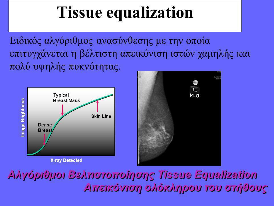 Tissue equalization Αλγόριθμοι Βελτιστοποίησης Tissue Equalization Απεικόνιση ολόκληρου του στήθους Αλγόριθμοι Βελτιστοποίησης Tissue Equalization Απεικόνιση ολόκληρου του στήθους Ειδικός αλγόριθμος ανασύνθεσης με την οποία επιτυγχάνεται η βέλτιστη απεικόνιση ιστών χαμηλής και πολύ υψηλής πυκνότητας.