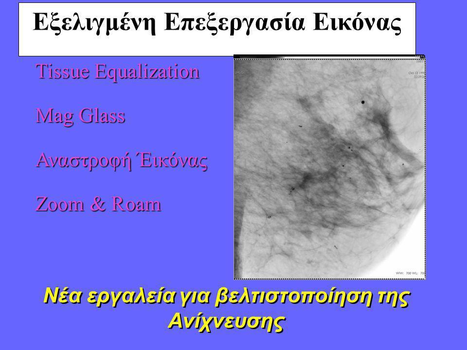 Εξελιγμένη Επεξεργασία Εικόνας Tissue Equalization Mag Glass Αναστροφή Έικόνας Zoom & Roam Νέα εργαλεία για βελτιστοποίηση της Ανίχνευσης