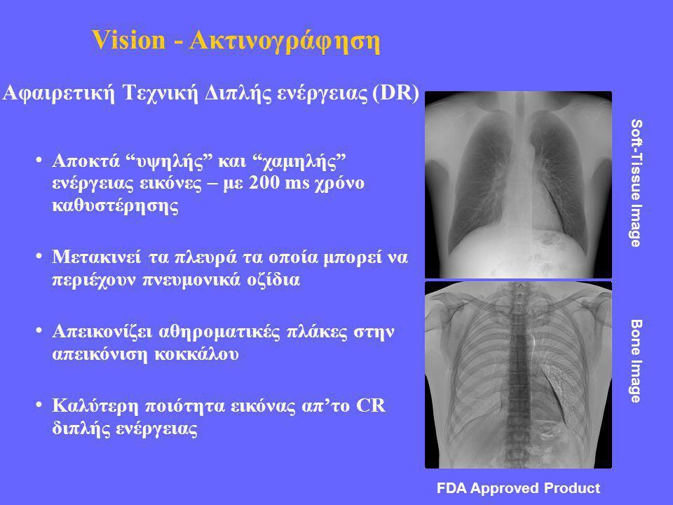 Αφαιρετική Τεχνική Διπλής ενέργειας (DR) • Αποκτά υψηλής και χαμηλής ενέργειας εικόνες – με 200 ms χρόνο καθυστέρησης • Μετακινεί τα πλευρά τα οποία μπορεί να περιέχουν πνευμονικά οζίδια • Απεικονίζει αθηροματικές πλάκες στην απεικόνιση κοκκάλου • Καλύτερη ποιότητα εικόνας απ'το CR διπλής ενέργειας Soft-Tissue Image Bone Image FDA Approved Product Vision - Ακτινογράφηση
