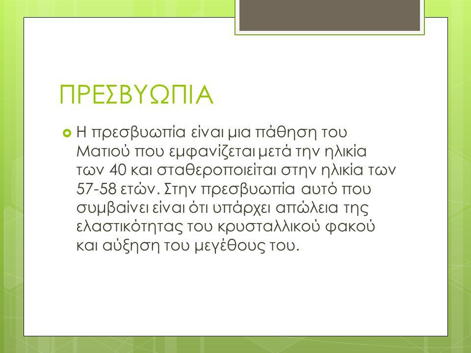 ΠΡΕΣΒΥΩΠΙΑ  Η πρεσβυωπία είναι μια πάθηση του Ματιού που εμφανίζεται μετά την ηλικία των 40 και σταθεροποιείται στην ηλικία των 57-58 ετών. Στην πρεσ