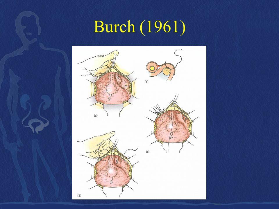 Burch •Ενδείκνυται μόνον αν υπάρχει ικανή κινητικότητα του κόλπου ώστε τα πλάγια τοιχώματά του να ανυψωθούν και να προσεγγίσουν τους συνδέσμους του Cooper αμφοτερόπλευρα.